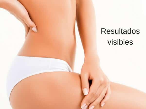 celulitis resultados visibles