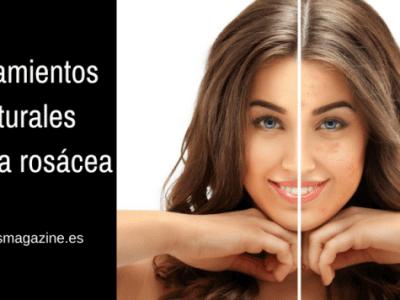 tratamientos naturales rosacea